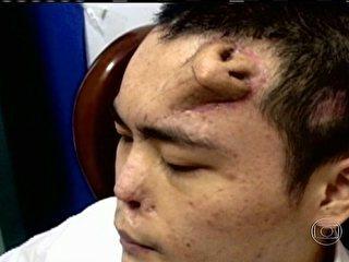 Especialistas explicam casos de <b>chinês</b> com <b>nariz</b> na <b>testa</b> e <b>...</b> 2014